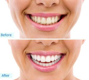 Dr. Dole, Cosmetic Dentistry, Yorba Linda, CA Dentist